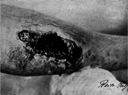Orificiul de ieșire făcut de un glonț exploziv.